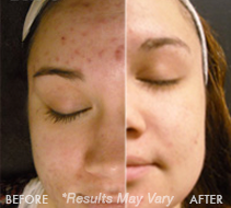 Chemical Peel Before and After Reno & Sparks, NV
