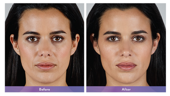 Juvederm Vollure XC Before & After Reno & Sparks, NV